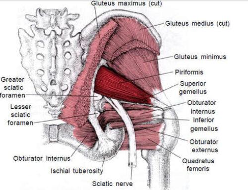 Sindrome del Piriforme o pseudo sciatica o falsa sciatalgia